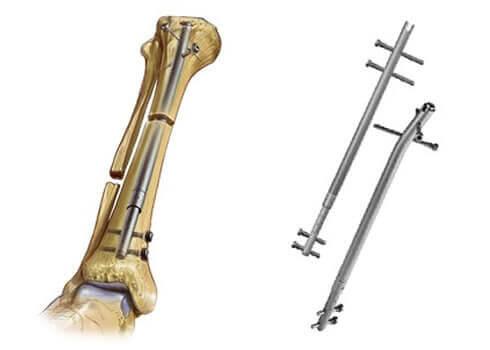 Implante Interno
